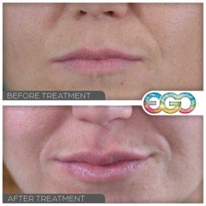 Lip Enhancement Definition