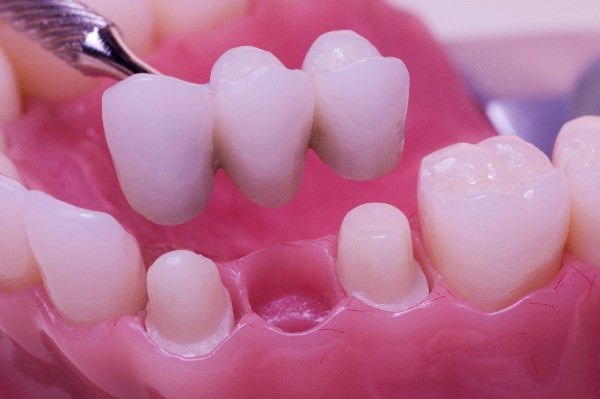 dental bridge westminster