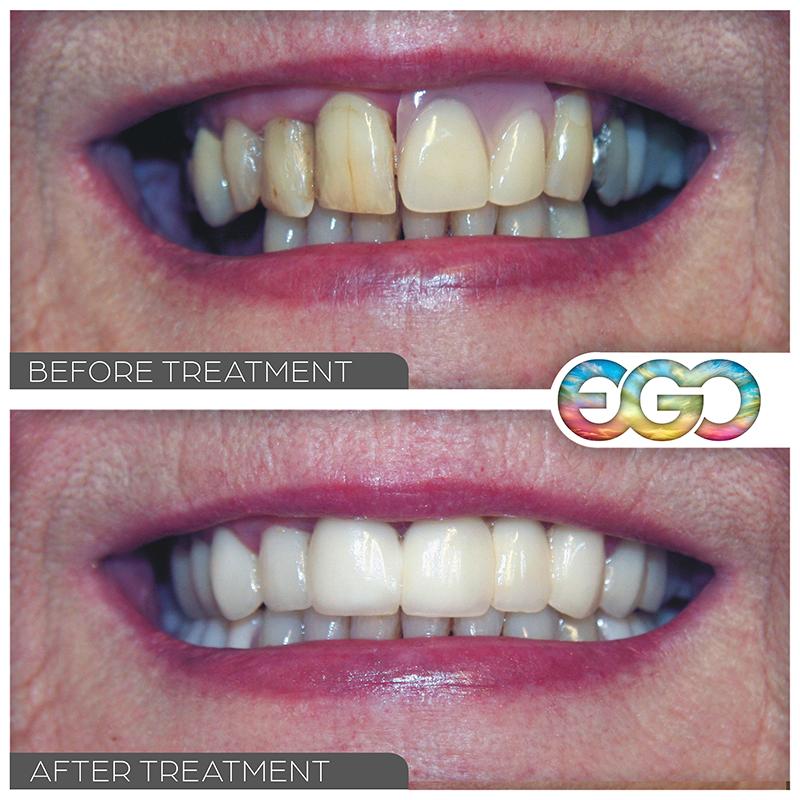 Dental Dentures westminster