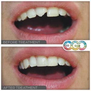 cosmetic dental fillings