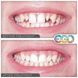 Pointy Teeth