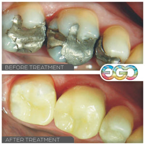 Replacement of Amalgam