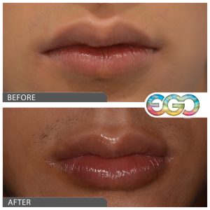 Lip Definition Filler