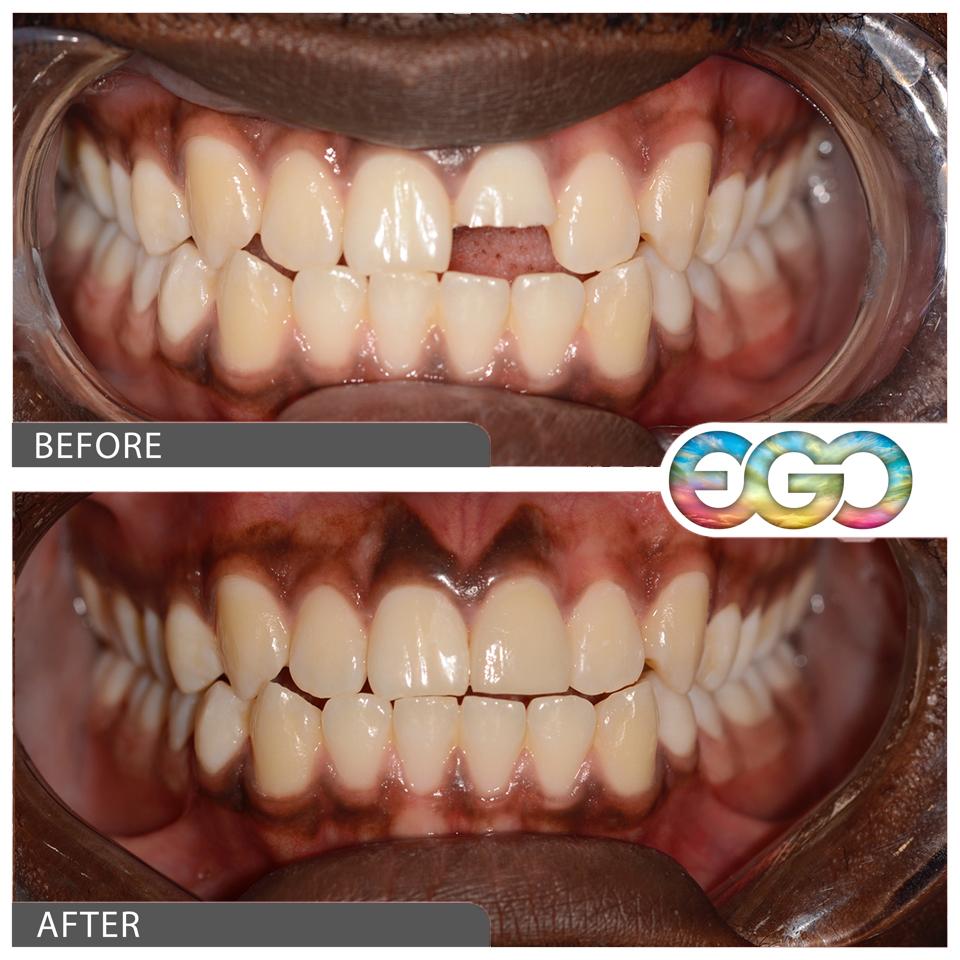 cosmetic dental crown