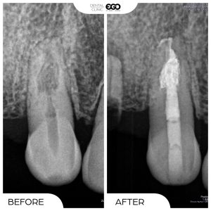 RootCanal1