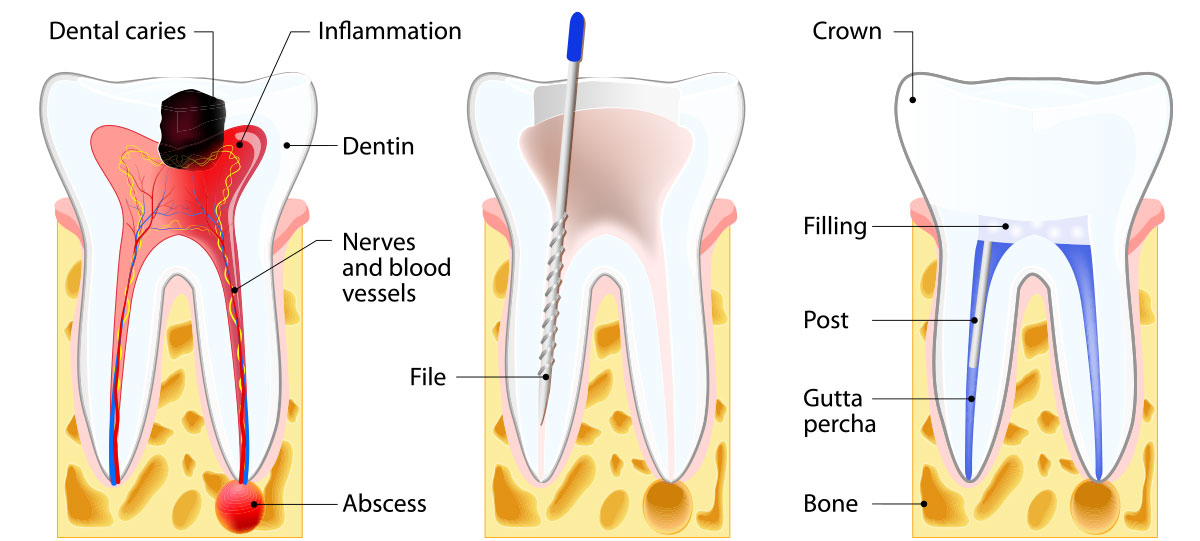 Root-Canal-Treatment-westminster