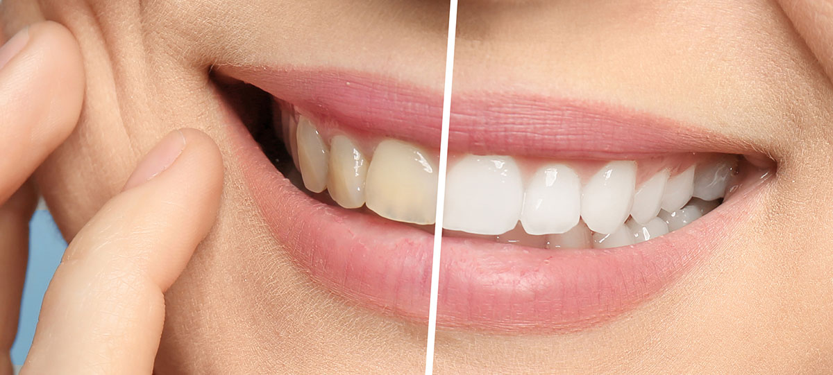Tooth-Whitening-westminster