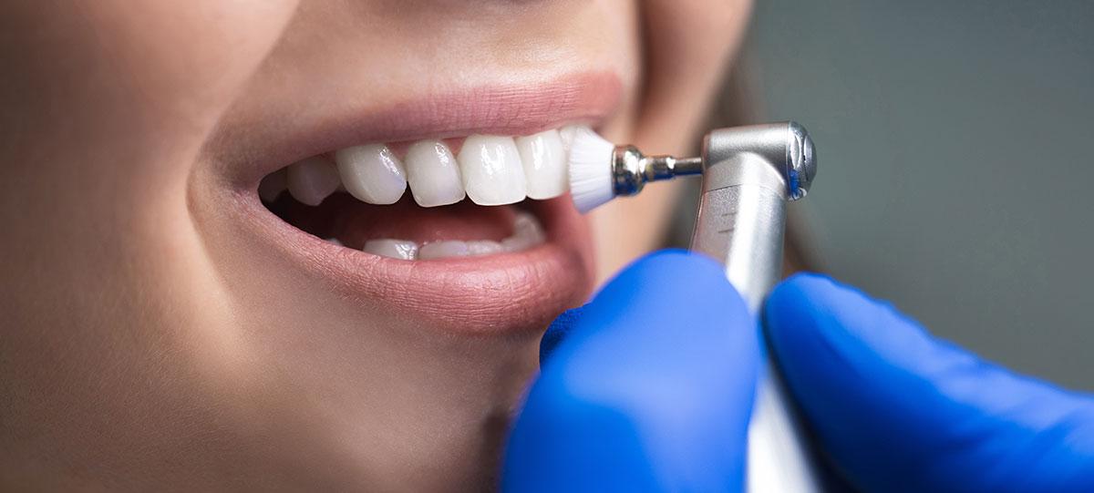 dental-hygene-london