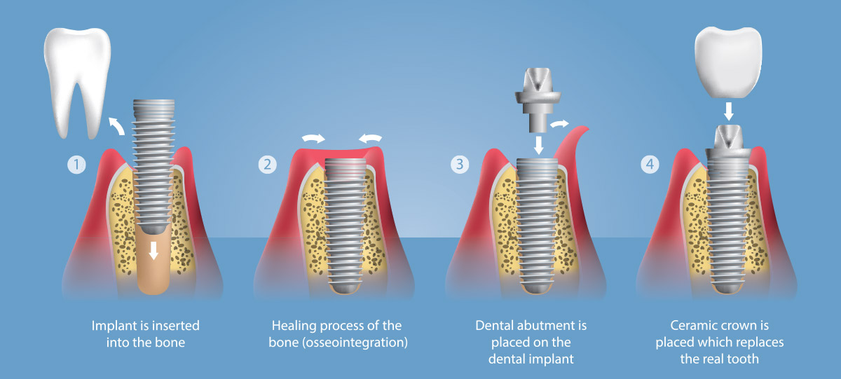 implants-dentistry-london