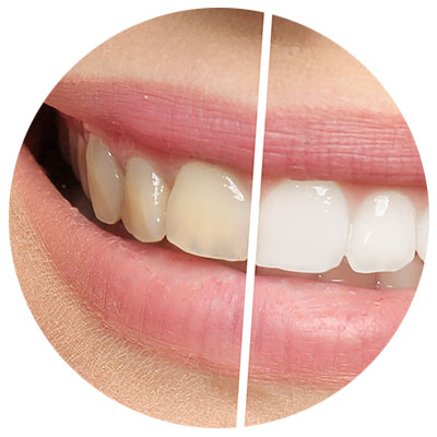 tooth-whitening westminster