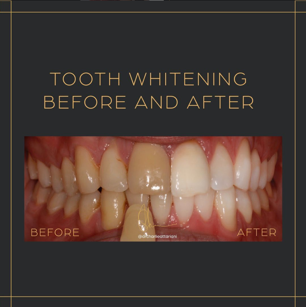Laser Tooth Whitening Ego Dental Clinic Westminster London